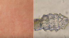 모공 속에 숨어 있던 '모낭충'이 우리가 잠든 사이 벌이는 충격적인 짓 (영상)