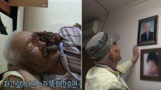 의사 도움으로 얼굴에 달린 '거대 혹' 뗀 할아버지가 처음 한 일 (영상)