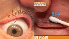 렌즈 자주 끼는 사람들 '안구건조증' 예방해주는 '눈 기름샘 짜기' (영상)