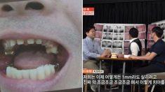 믿고 찾아온 환자에게 치아 최대 20개까지 갈아버린 '과잉진료' 한 치과 의사