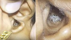 두통 시달리던 여성의 귓속에는 '거미'가 살고 있었다