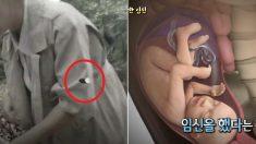 아랫배에 맞은 '총알' 때문에 임신하게 된 여성 (서프라이즈)