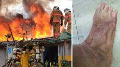 생명을 구하기 위해 불속으로 뛰어들었다가 녹아내린 '소방관의 발'