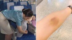기도 막힌 '일본 어린이' 살리려고 팔에 멍들 때까지 응급치료한 대한항공 승무원